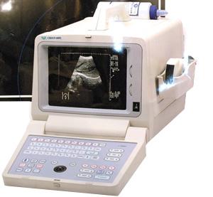 УЗИ- сканер Chison 600M