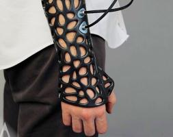 3D гипс Osteoid Medical Cast